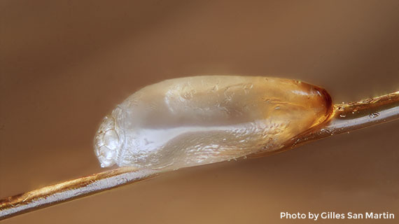 Close-up view of a louse egg on hair shaft